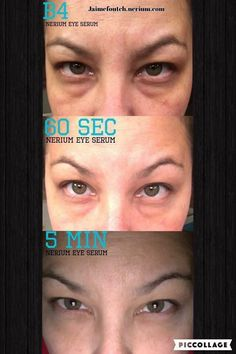 #RESULTS after applying Nerium Eye Serum!  It works immediately AND long term…