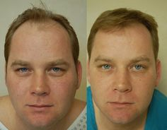 Hair transplant performed by Dr. Vikas Gupta