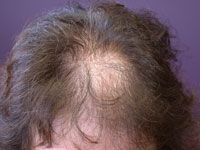 Too young to be losing hair? Don't miss this article!