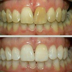 Whiten & Brighten your smile ! Smoking, wine Staines, caffeine ! #whitening #teeth #healthysmile #clinica #jjclinic #happy