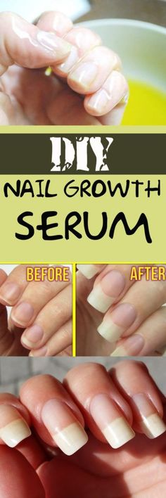 DIY NAIL GROWTH SERUM #nail #health #serum #beauty #style