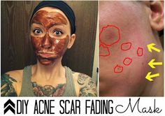 Acne Scar Fading Mask  You will need:  1/2 tsp cinnamon (anti-fungal, astringent, anti-viral)  1/2 tsp nutmeg (anti-inflammatory)  1 tsp honey (many healing properties)  2 tsp lemon juice OR less depending on you're skin type (vitamin C is great for fading scars or lightening skin)  Apply & leave for 20-30 minutes. Wash the mask off (DON'T RUB)  Pat dry & moisturize