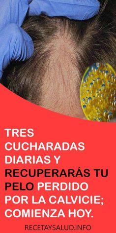 Hairstyles For Round Faces Beauty Spa Hair Loss Remedies Hair Repair Grow Hair White Hair Perdido Beauty Secrets Beauty Hacks Grey Hair Remedies, Curly Hair Styles, Natural Hair Styles, Cabello Hair, Kim Jisoo, Grow Hair, Hair Loss, Skin Care Tips, Shampoo