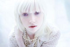 человек альбинос: 18 тыс изображений найдено в Яндекс.Картинках