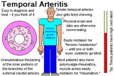 """Temporal arteritis - Giant cell Arteritis. Inflammatory process assoc with lupus, RA or infections. Unilateral, severe pain, constant. """"Classic"""" S&S tenderness over temporal artery. F:M 3:1, avg onset 65-70 yo. Rare <50, Decr blood supply to optic nerve may cause blindness. Sed rate very high, norm in 20%. Biopsy for confirm. Admit, high-dose steroids, analgesic, neuro consult."""