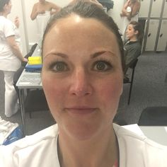 Skin after one #IonActivePower treatment! Expert Strength- a boot camp for your skin! @dermalogicauk @dermalinstitute #LearnDerm