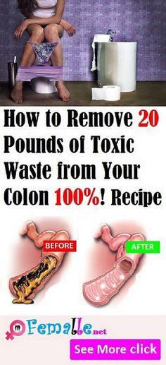 How To Remove 20 Pounds Of Toxic Waste From Your Colon #HowToRemove20PoundsOfToxicWasteFromYourColon