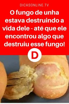 Tratar fungos nas unhas | O fungo de unha estava destruindo a vida dele - até que ele encontrou algo que destruiu esse fungo! | E é tão fácil de fazer... Aprenda ↓ ↓ ↓