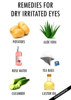 HOME REMEDIES FOR DRY IRRITATED EYES