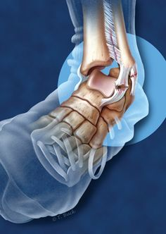 Ankle sprains usually heal. Chronic ankle instability may require surgical repair