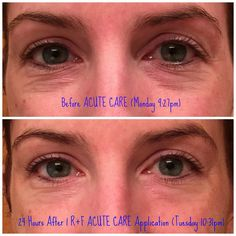 Need to look your best before a wedding, reunion or vacation???  Acute Care can aide in a quick solution!