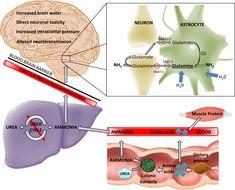 Σπογγώδης εγκεφαλοπάθεια των βοοειδών Urea Cycle, Intracranial Pressure, Muscle Protein, Neurons, Amino Acids, Nerve Cells