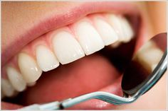 Best Oral Surgery in Dubai, Root canal treatment in Dubai, Sports dentistry in Dubai in Dubai, UAE