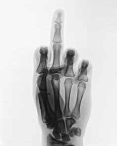 Wim Delvoye use Xray photography in a quite provocative way !!