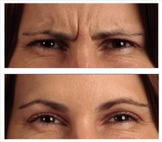 One of the most stressful aging signs is the appearance of the frown lines. These can be fine either fine or deep wrinkles in your forehead. Keep reading an Ride Du Lion, Face Cream For Wrinkles, Rides Front, At Home Face Mask, Prevent Wrinkles, How To Get Rid, Skin Care Tips, Sensitive Skin, Massage