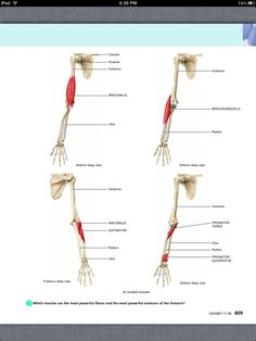 Principles of Anatomy and Physiology, Chapter 11, The Muscular System, 44, book pg 409