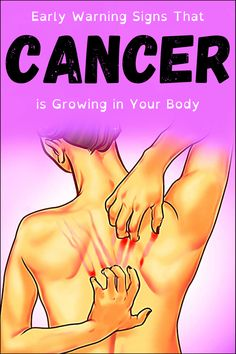 Early Warning Signs That Cancer is Growing in Your Body Health Clear Skin Health Remedies Health Tips Health For women Health Natural Health Tips Healthy Detox, Health And Nutrition, Healthy Tips, How To Stay Healthy, Health And Wellness, Healthy Smoothies, Healthy Recipes, Healthy Snacks, Vegetarian Recipes