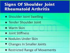 signs of shoulder joint arthritis  Visit us  jointpainrepair.com  Via  google images  #jointpain #jointpains #jointpainrelief #kneepain #kneepains #kneepainnogain #arthritis #hipjoint  #jointpaingone #jointpainfree