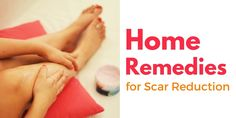 home remedies for scar reduction
