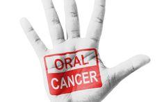 Cerca del 20% de los pacientes de #cáncer oral habían perdido todos sus dientes antes del tratamiento – UCC+i de la Universidad de Sevilla #odontología