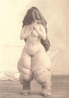 O.G. Mason (Bellevue Hospital, New York)  A. C., age 19, U.S.: Elephantiasis  1880-1885 (ca)