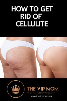 We have the best tricks and creams to help you get rid of that dreaded 'orange peel' look. And the low cost will suprise you! We have links to the top 3 ant-cellulite products selling worldwide Orange Peel, How To Get Rid, Best Mom, Travel Advice, Ant, Cellulite, Dreads, Fitness Fashion, Fashion Beauty