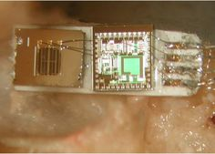 Middle Ear MEMS Microphone Could Restore Hearing