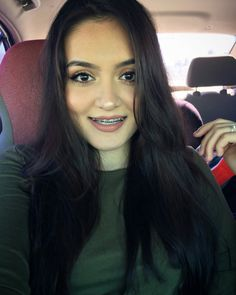 Girls With Braces - adeadylen: Before and after braces! After Braces, Braces Before And After, Teeth Braces, Braces Smile, Piercing, Braces Girls, Braces Colors, Brace Face, Woman Smile