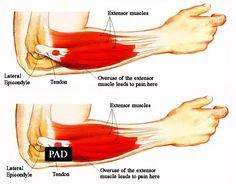 tennis elbow diagrams - Google Search