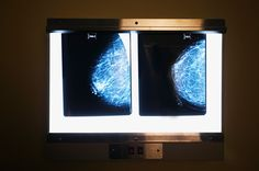 Did your mammography report come with a mention of breast density? 2016