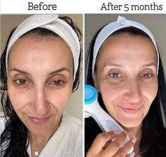Nu Skin, Healthy Skin Care, Beauty Skin, Skincare, Business, Ideas, Spa Facial, Skincare Routine, Skins Uk