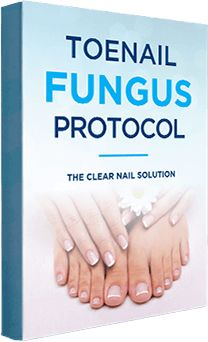 False nails have the advantage of offering a manicure worthy of the most advanced backstage and to hold longer than a simple nail polish. The problem is how to remove them without damaging your nails. Toe Fungus, Nail Fungus, Thin Nails, My Nails, Feet Nails, Wedding Manicure, Clear Nails, Nail Pro, Fun Cooking