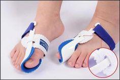 Como eliminar os joanetes sem cirurgia - 9 passos