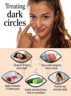 How To Remove Dark Circles Under Your Eyes reasons what causes dark circles under eyes finding solutions for How To Get Rid Of Dark Circles Naturally at home. Good Skin Tips, Healthy Skin Tips, Clear Skin Face, Face Skin Care, Beauty Tips For Glowing Skin, Health And Beauty Tips, Doterra, Dark Eye Circles, Reduce Dark Circles