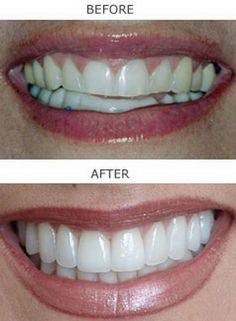 Dentaltown - Would you love to have a beautiful smile?