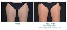 CoolSculpting Before & After Photo | Results by Bodify.