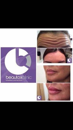 The beautox clinic will be running this coming Wednesday, 29th in the salon. There are a few spaces left for appointments * Please note this clinic only runs once a month so there is no optional date *  £25 deposit policy must be paid to secure your appointment. Mail for booking & pricing 💋 #http://www.jennisonbeautysupply.com/  ,#hairinspo #longhair #hairextensions #clipinhairextensions #humanhair #hairideas #hairstyles #extensions #prettyhair  #clipinhairextensions #hairextensions…