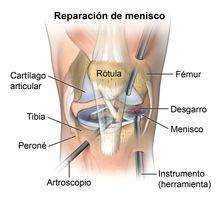 Reparación de menisco