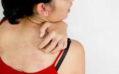 Sfaturi Utile: Despre eczeme