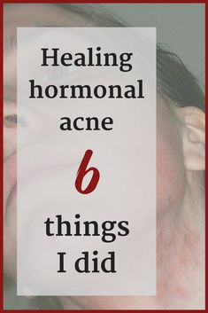 I beat hormonal acne: My 6 powerful little secrets Are you looking for a hormonal acne cure? In found out for myself how to treat hormonal acne and I am sharing 6 hormonal acne treatments with you. Don't give up, it is possible to heal this! (Just look at Natural Acne Remedies, Home Remedies For Acne, Hormonal Acne Remedies, Pimples Remedies, Snoring Remedies, Health Remedies, Cystic Acne Treatment, Acne Treatments, Natural Acne Treatment
