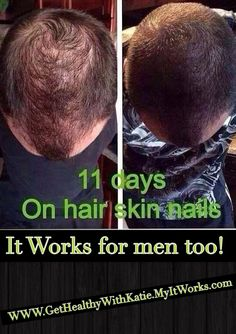 This is crazy! Better than hair plugs and WAY cheaper. It Works! Even against male pattern baldness!