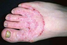 45 Best Athlete S Foot Images Athletes Foot Skin Infection