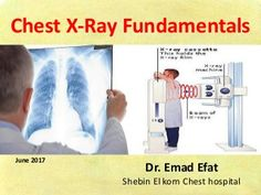 Chest X-Ray Fundamentals Dr. Concept Map Nursing, Langerhans Cell Histiocytosis, Subclavian Artery, Pleural Effusion, Silhouette Sign, Pulmonary Fibrosis, Cranial Nerves, Study Tips, Anatomy
