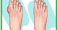 The bunions are salt deposits, andangina, gout, influenza, bad metabolism, rheumatic infections, poor diet and wearing uncomfortable shoes...