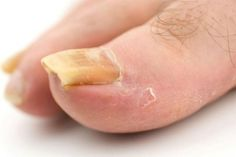 apple cider vinegar for toenail fungus: Apple cider vinegar contains anti fungal and antibacterial properties and thereby kills those bacteria and fungus.