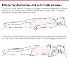 Decerebrate vs decorticate postures How I remember: DecErEbrate- ExtrEmEtiEs are facing OUTDeCORticate- extremeties are facing IN to the CORE of the body