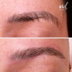 Eyebrow Tattoo Removal, Laser Removal, Microblading Eyebrows, Makeup Tips, Lips, Tattoos, Surgery, Hair, Small Dogs