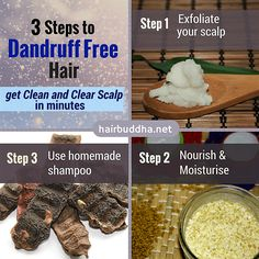 Are you tired of dandruff? These natural remedies can bring instant relief from the itch & flakes. Here are 3 simple steps to treat dandruff Natural Hair Care, Natural Hair Styles, Flaky Scalp, Getting Rid Of Dandruff, Dandruff Remedy, Shiny Hair, Free Hair, Keratin, Easy Hairstyles