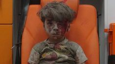 Battle for Aleppo: Photo of shocked and bloodied Syrian five-year-old sparks outrage - BBC News