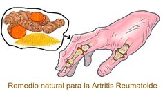 Rheumatoid arthritis is a chronic inflammatory disorder that usually affects the lining of smaller joints like fingers and toes. With time, it can even aff Prevent Arthritis, Yoga For Arthritis, Juvenile Arthritis, Natural Remedies For Arthritis, Rheumatoid Arthritis Treatment, Arthritis Relief, Types Of Arthritis, Pain Relief, Arthritis Exercises